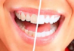Sposobyi-otbelivaniya-zubov