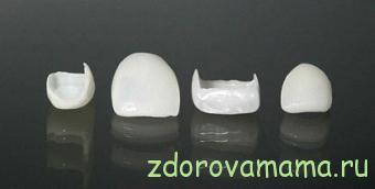 Vosstanovlenie-zubov-vinirami