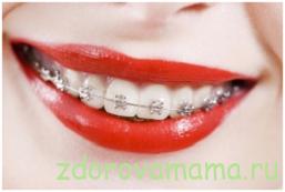 ortodontiya-zubov-i-metodiki-lecheniya
