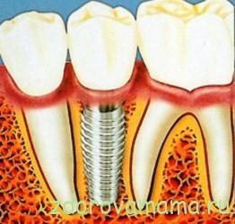 zubnoy-implantat
