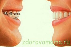 Ispravlenie-prikusa-zubov